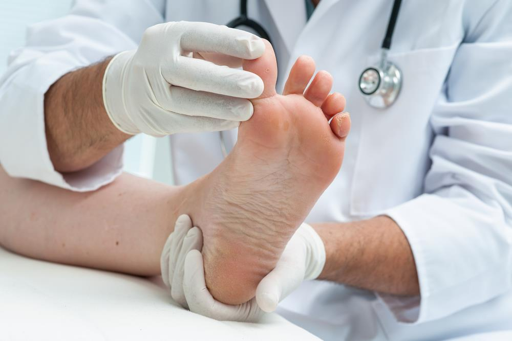 The Lacuna Method for Fungal Nail Infections